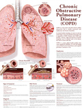 Chronic Obstructive Pulmonary Disease COPD Anatomical Chart 2nd Edition Poster Print Poster