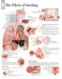 Laminated Effects of Smoking Educational Chart Poster Kunstdrucke