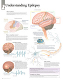 Laminated Understanding Epilepsy Educational Chart Poster Prints