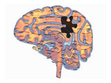 Biomedical Illustration of the Human Brain with a Jigsaw Puzzle Design Overlayed Giclee Print by Scott Camazine