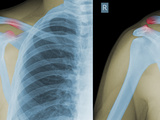 X-Rays Showing Type III Ac Separation Both Acromioclavicular (Right) and Coracoclavicular (Left) Photographic Print by James Anderson