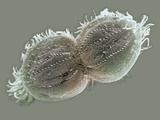 The Ciliate Protozoan Oxytrichia Reproducing by Fission SEM Photographic Print by Aaron Bell