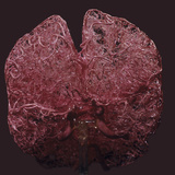Arteries of the Human Brain, Colored Resin Cast Photographic Print by Ralph Hutchings