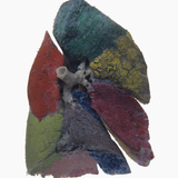 Resin Cast of Human Lung Showing Each Lobe in Different Color Photographic Print by Ralph Hutchings