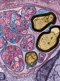Cross-Section of a Nerve Fiber in Intestinal Connective Tissue Showing Photographic Print by David Phillips