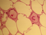 Fat or Adipose Cells, LM X150 Photographic Print by David Phillips
