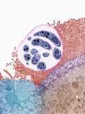 Pneumocystis Fungus Pathogen in Human Tissue, TEM Photographic Print by Gopal Murti