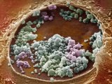 Chlamydia Trachomatis Bacteriin Human Cervical Epithelial Cell Photographic Print by David Phillips