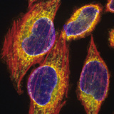Fluorescent Confocal Image of Hela Cells Photographic Print by Gopal Murti