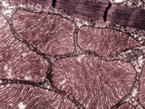 Skeletal Muscle Sarcomeres and Associated Mitochondria, TEM Photographic Print by David Phillips