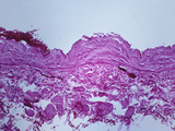 Cross-Section of the Wall of the Normal Vena Cava, H&E Stain, LM X31 Photographic Print by Frederick Skarva