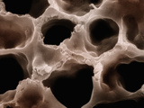 Mammal Lung Showing Thin-Walled Alveoli and the Capillaries in their Walls Photographic Print by John Sasner
