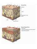 Illustration Showing Cross-Sections of Normal Skin and Skin after a Second Degree Burn Injury Giclee Print by  Nucleus Medical Art