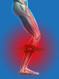 Lower Leg Cramp or Pain as Illustrated with a Knot in the Muscle Photographic Print by Carol & Mike Werner