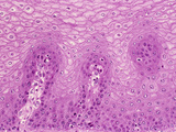 Human Esophagus Section with Stratified Squamous Epithelium Mucosa, H&E Stain, LM X64 Photographic Print by Gladden Willis