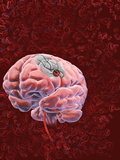 Stroke, Occurs When a Part of the Brain Is Injured by a Disturbance to its Blood Supply Photographic Print by Craig Zuckerman