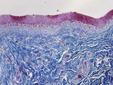 Section of the Human Urinary Bladder, Eastic Tissue Stain, LM X30 Photographic Print by  Biodisc