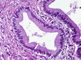 Human Pancreatic Duct Lined by Simple Columnar Epithelium with a Fibrous Tissue Wall, LM X100 Photographic Print by Gladden Willis