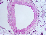 Cross Section of a Normal Coronary Artery, H&E Stain, LM X12 Photographic Print by Frederick Skvara