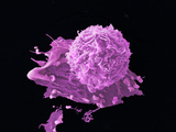 Breast Cancer Cell, SEM Photographic Print by Anne Weston