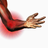Elbow Pain, Human Elbow Showing Bones And Muscles Photographic Print by Carol & Mike Werner