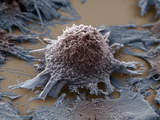 Lung Cancer Cell, SEM X3500 Photographic Print by Anne Weston