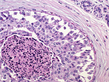 Cross-Section of Comedo Intraductal Carcinoma of the Human Breast in an Elderly Woman Photographic Print by Gladden Willis