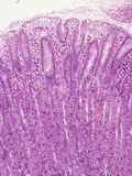 Human Stomach Fundus Section Showing Gastric Pits Above and Gastric Glands Photographic Print by Gladden Willis