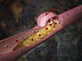 Illustration of Atherosclerosis in an Artery a Lesion Develops in the Artery Wall Photographic Print by Carol & Mike Werner