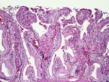 Normal Human Gallbladder Mucosal Folds or Rugae Lined by Simple Columnar Epithelium, LM X26 Photographic Print by Gladden Willis