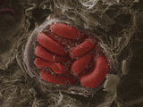 Red Blood Cells in a Blood Vessel in Mammary Tumor, SEM Photographic Print by Anne Weston