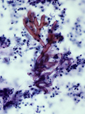 Aspergillus Fumigatus Fungi in Human Sputum, the Cause of Aspergillosis, PAS Stain, LM X100 Photographic Print by Gladden Willis