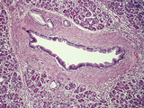 Human Pancreatic Duct Lined by Simple Columnar Epithelium, Fibrous Tissue Wall Photographic Print by Gladden Willis