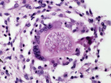 Spherule with Endospores of the Coccidioides Immitis Fungus That Causes Coccidioidomycosis Photographic Print by Gladden Willis