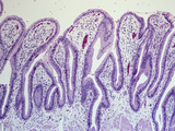 Section of the Normal Human Gallbladder Mucosa Villi Covered by Simple Columnar Epithelium, LM X26 Photographic Print by Gladden Willis