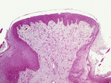 Primate Tongue Fungiform Papilla Section, H&E Stain, LM X26 Photographic Print by Gladden Willis