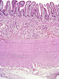 Human Duodenum Region of the Small Intestine Mucosal Crypts Lined by Simple Columnar Epithelium, Photographic Print by Gladden Willis