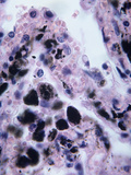 Lung Anthracosis Caused by the Anthrax Bacterium (Bacillus Anthracis), LM X200 Photographic Print by Arthur Siegelman