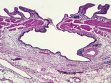 Chronic Cholecystitis in the Rokitansky-Aschoff Sinus Showing a Mucosal Lined Protrusion Photographic Print by Gladden Willis