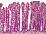 Colon Transverse Section, H&E Stain, LM X140 Photographic Print by Alvin Tesler