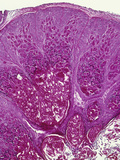 Skin Section Showing an Infection Due to the Molluscum Contagiosum Virus, H&E Stain, LM X26 Photographic Print by Gladden Willis