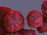 Pancreatic Cancer Cells, SEM Photographic Print by Anne Weston