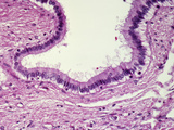 Human Simple Columnar Epithelium Lining the Intrahepatic Bile Duct, H&E Stain, LM X100 Photographic Print by Gladden Willis