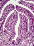Normal Human Gallbladder Mucosal Folds or Rugae Lined by Simple Epithelium, H&E Stain, LM X64 Photographic Print by Gladden Willis