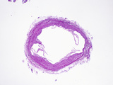 Cross Section of a Human Vein with Thin Valve Leaves Attached to the Vein Wall, H&amp;E Stain, LM X5 Photographic Print by Gladden Willis
