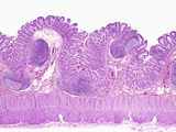 Normal Human Colon Glandular Mucosa Photographic Print by Gladden Willis