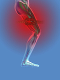 Upper Leg Cramp or Pain as Illustrated with a Knot in the Muscle Photographic Print by Carol & Mike Werner