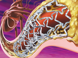 Stent in Coronary Artery of the Heart Photographic Print by Craig Zuckerman