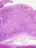 Human Gastric Stomach Mucosa with Smooth Muscle Wall Below, H&amp;E Stain, LM X10 Photographic Print by Gladden Willis