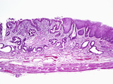 Human Gastroesophageal Junction Section Showing Stratified Squamous Mucosa on the Right Photographic Print by Gladden Willis